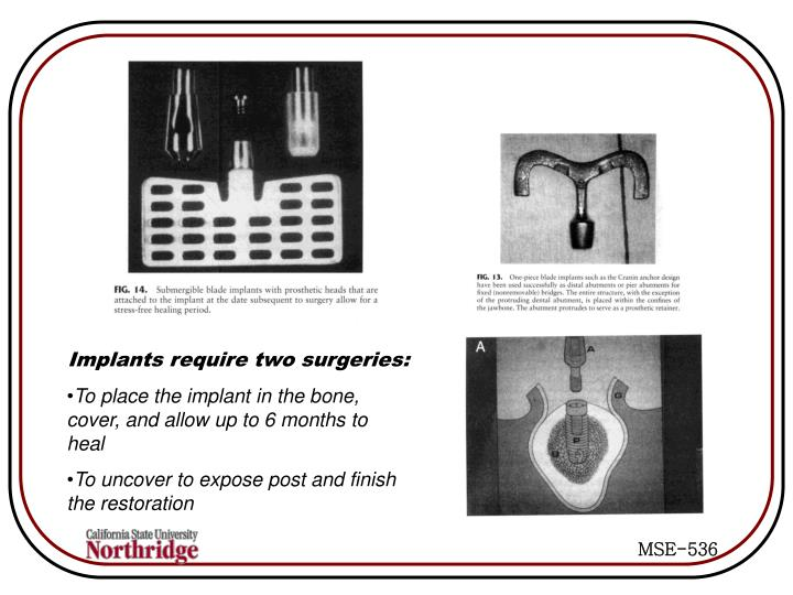 Implants require two surgeries: