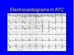 electrocardiograma in atc