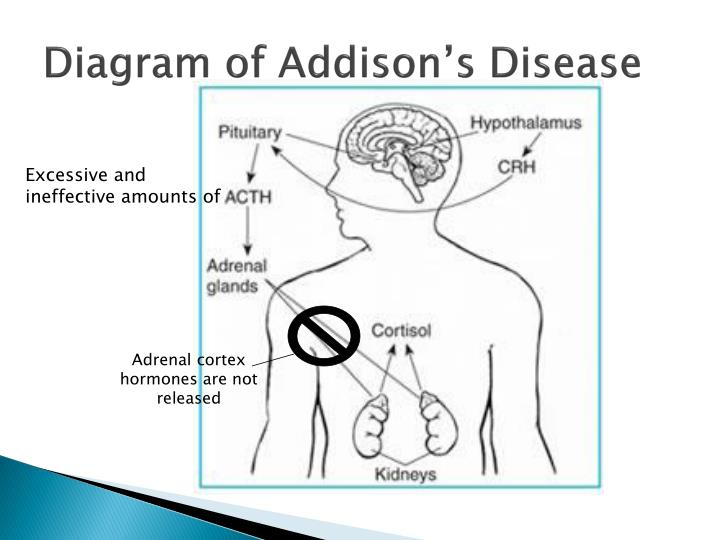 PPT - Addison's Disease PowerPoint Presentation - ID:1412672