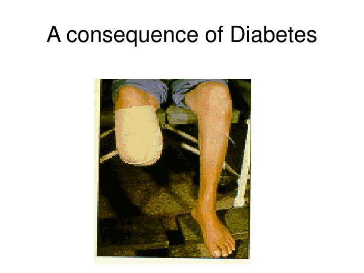 A consequence of Diabetes