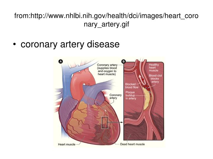 from:http://www.nhlbi.nih.gov/health/dci/images/heart_coronary_artery.gif