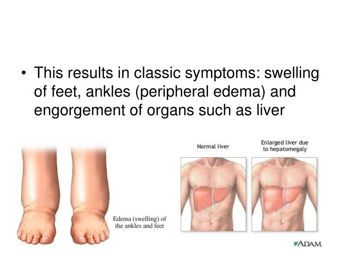 This results in classic symptoms: swelling of feet, ankles (peripheral edema) and engorgement of organs such as liver