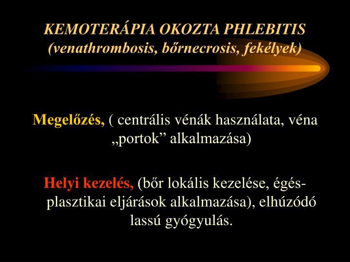 KEMOTERÁPIA OKOZTA PHLEBITIS
