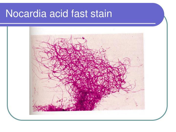 Nocardia acid fast stain