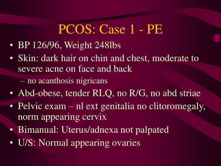 PCOS: Case 1 - PE