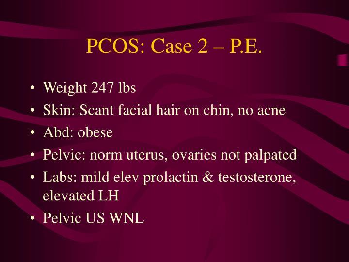 PCOS: Case 2 – P.E.