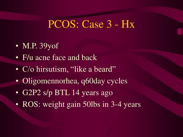 PCOS: Case 3 - Hx