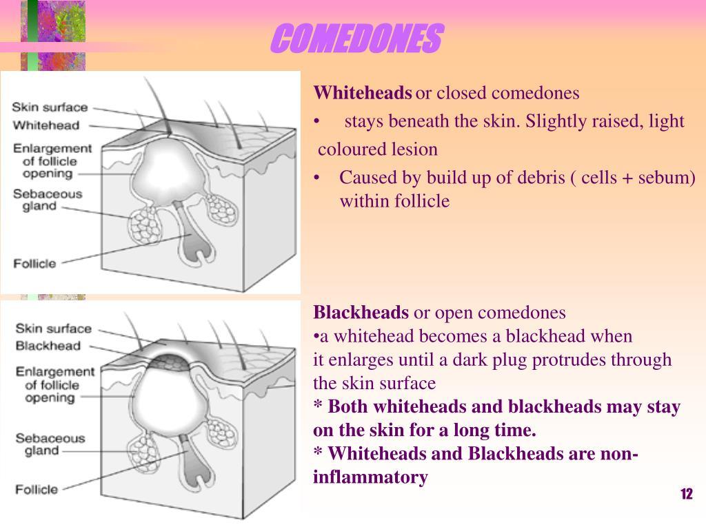 COMEDONES