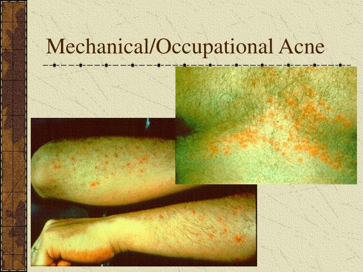 Mechanical/Occupational Acne