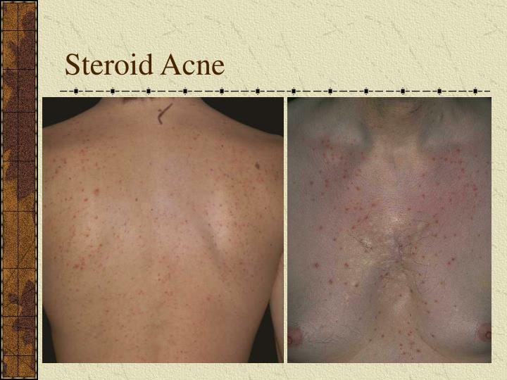 Steroid Acne