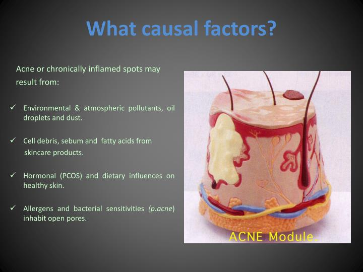 What causal factors?