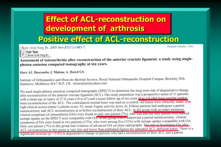 Effect of ACL-reconstruction on