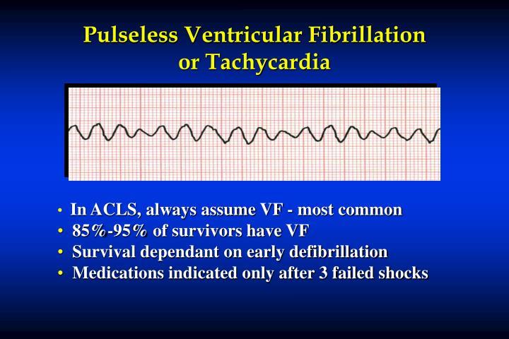 Pulseless Ventricular Fibrillation