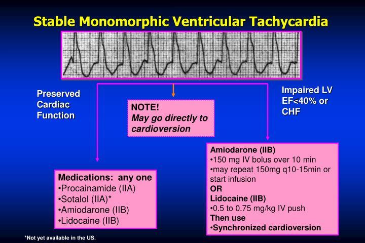 Stable Monomorphic Ventricular Tachycardia