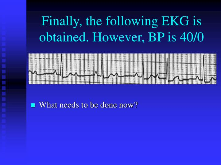 Finally, the following EKG is obtained. However, BP is 40/0