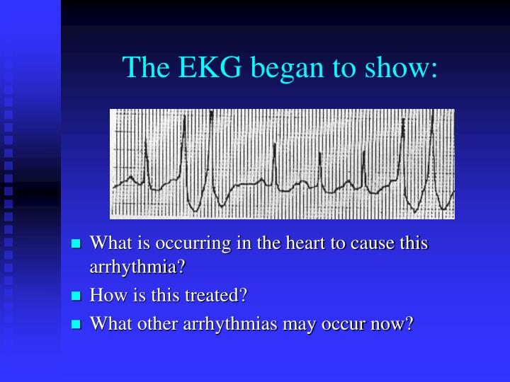 The EKG began to show: