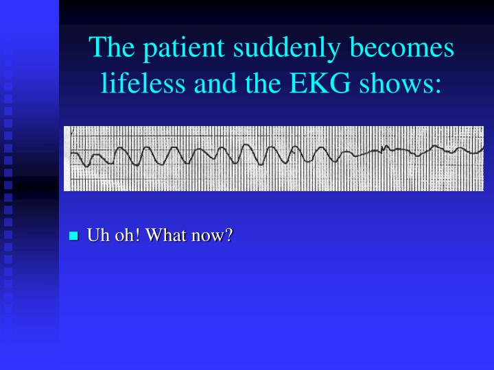 The patient suddenly becomes lifeless and the EKG shows: