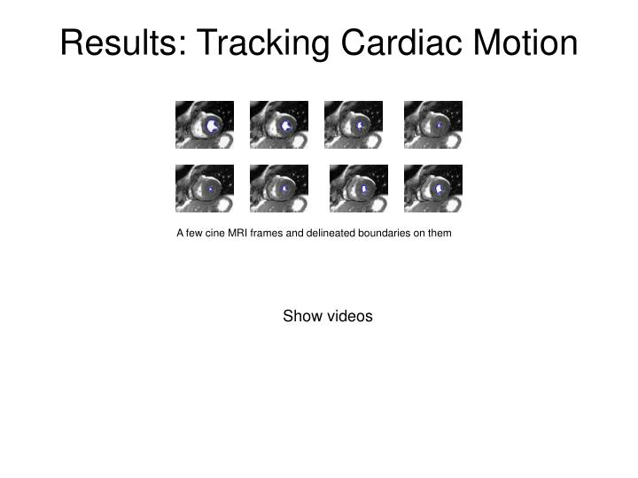 Results: Tracking Cardiac Motion