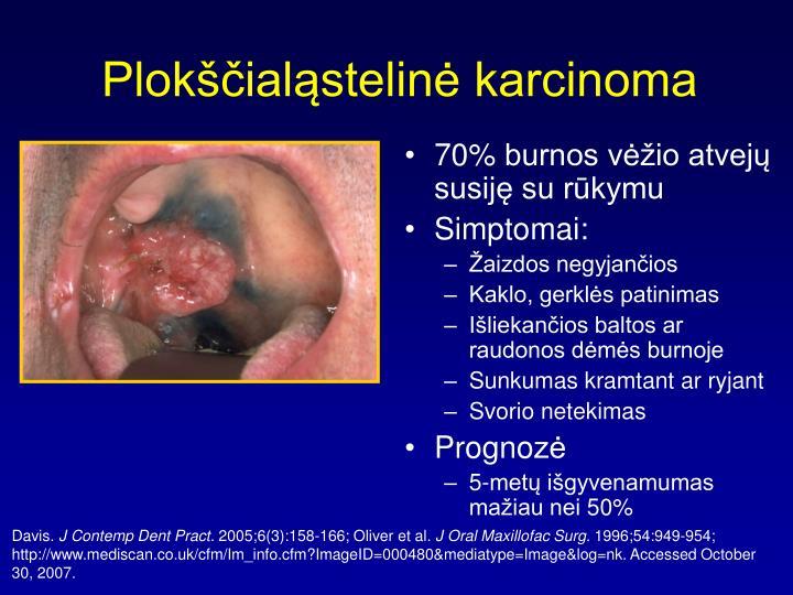 Plokščialąstelinė karcinoma