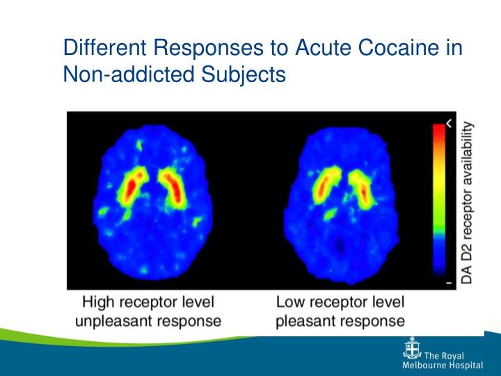 Different Responses to Acute Cocaine in Non-addicted Subjects
