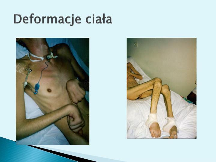 Deformacje ciała