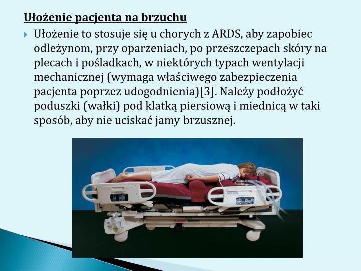 Ułożenie pacjenta na brzuchu