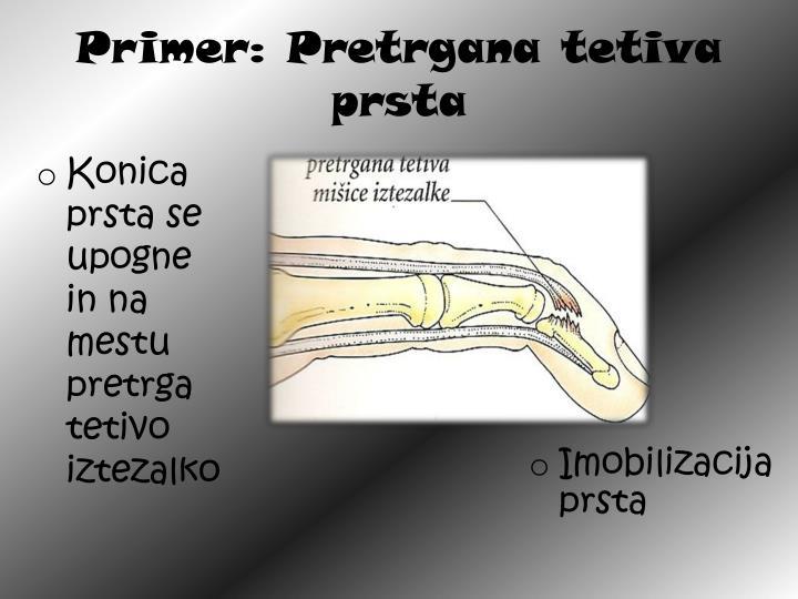 Primer: Pretrgana tetiva prsta