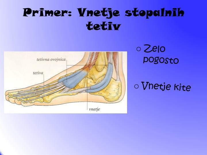 Primer: Vnetje stopalnih tetiv