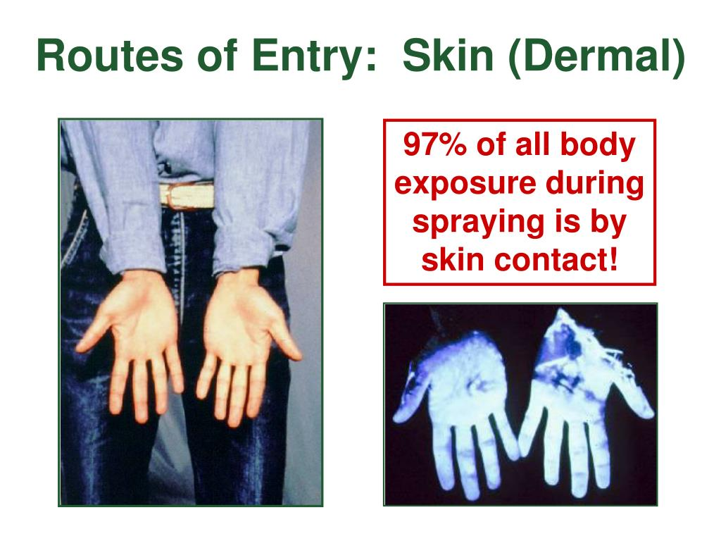 Routes of Entry:  Skin (Dermal)