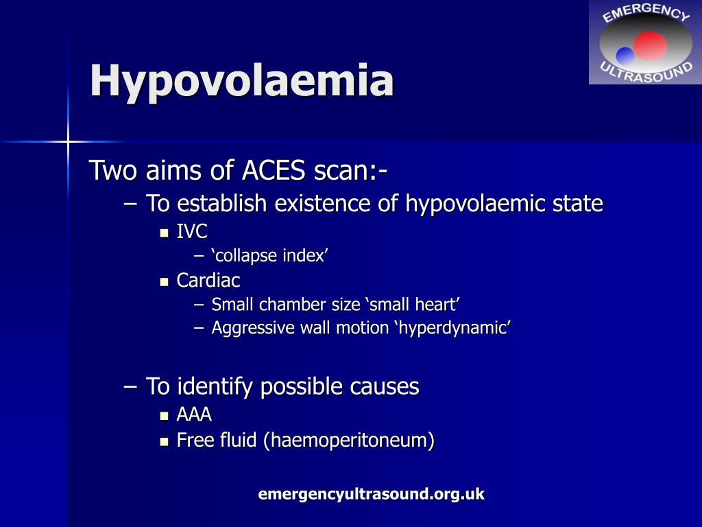 Hypovolaemia