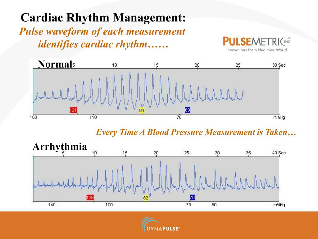 Cardiac arrhythmia ppt 28 images pharmacology of for Drap housse definition
