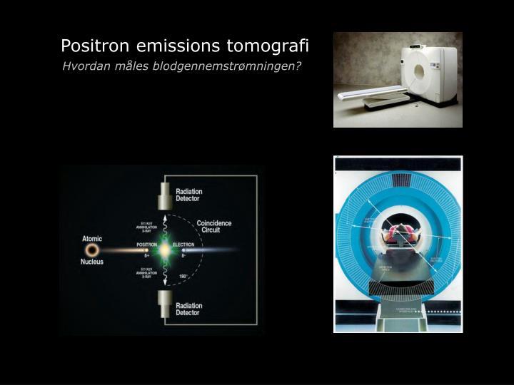 Positron emissions tomografi
