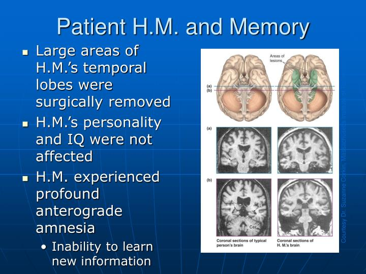 Patient H.M. and Memory
