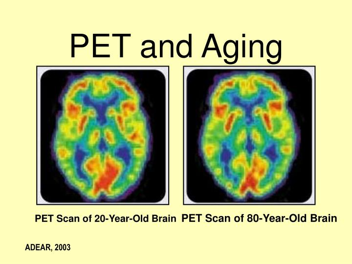 PET Scan of 80-Year-Old Brain
