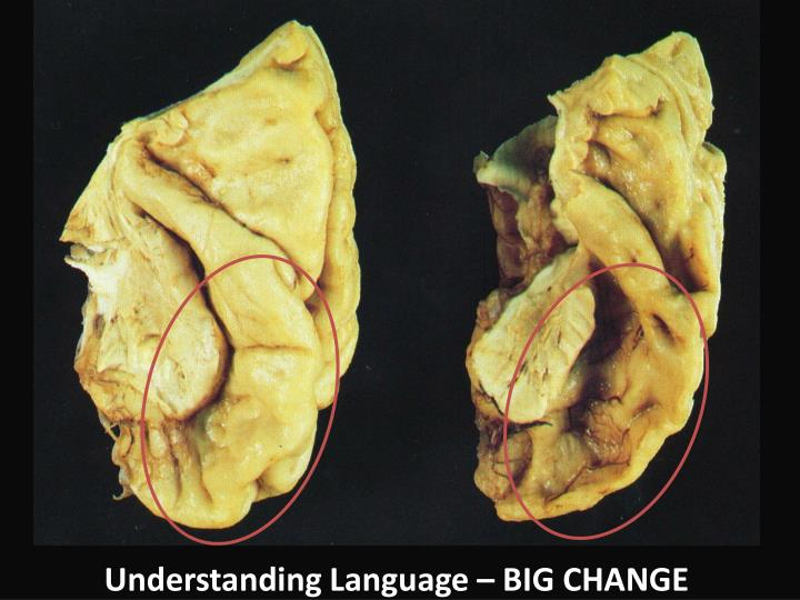 Understanding Language – BIG CHANGE