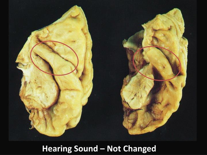 Hearing Sound – Not Changed