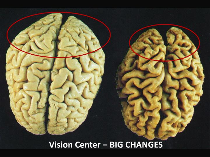 Vision Center – BIG CHANGES