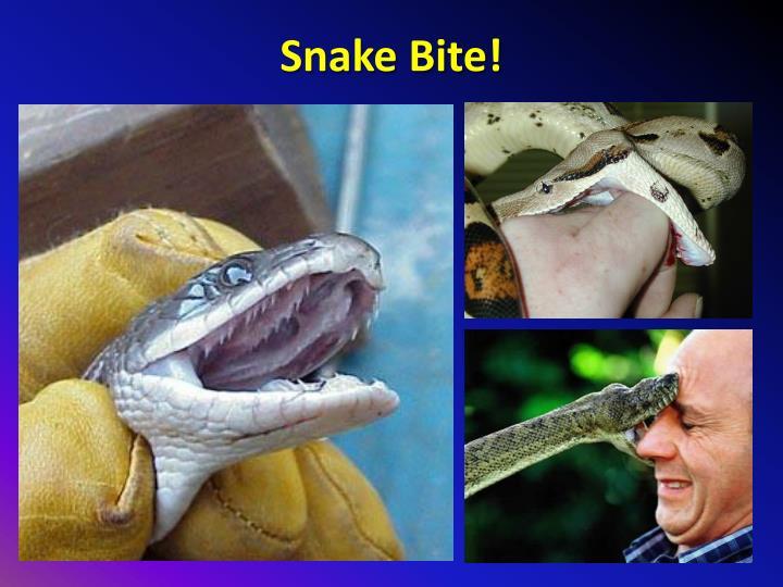 Snake Bite!