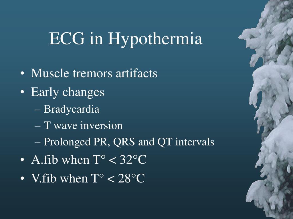 ECG in Hypothermia