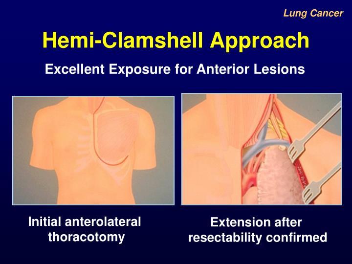 Hemi-Clamshell Approach
