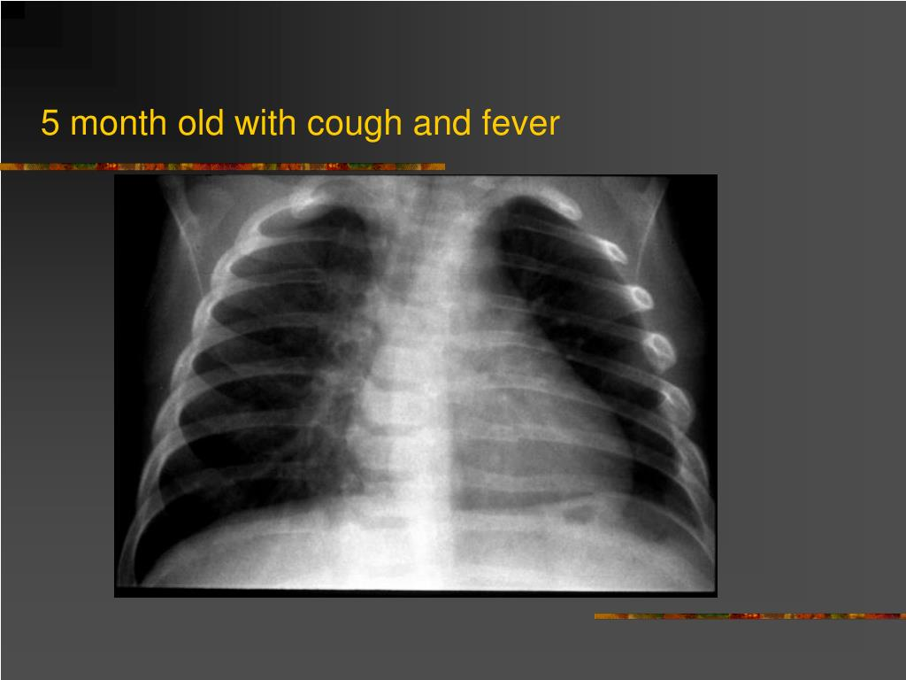 5 month old with cough and fever