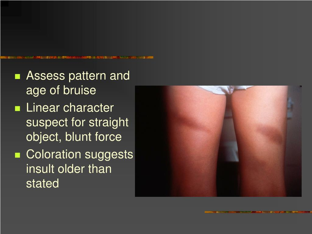Assess pattern and age of bruise