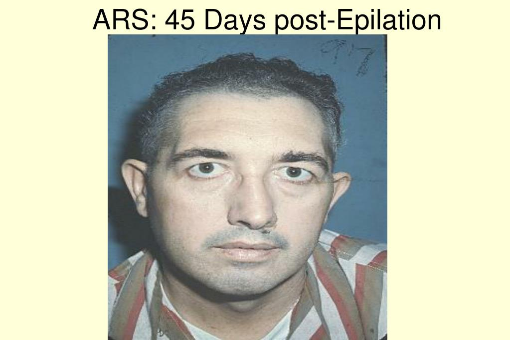 ARS: 45 Days post-Epilation