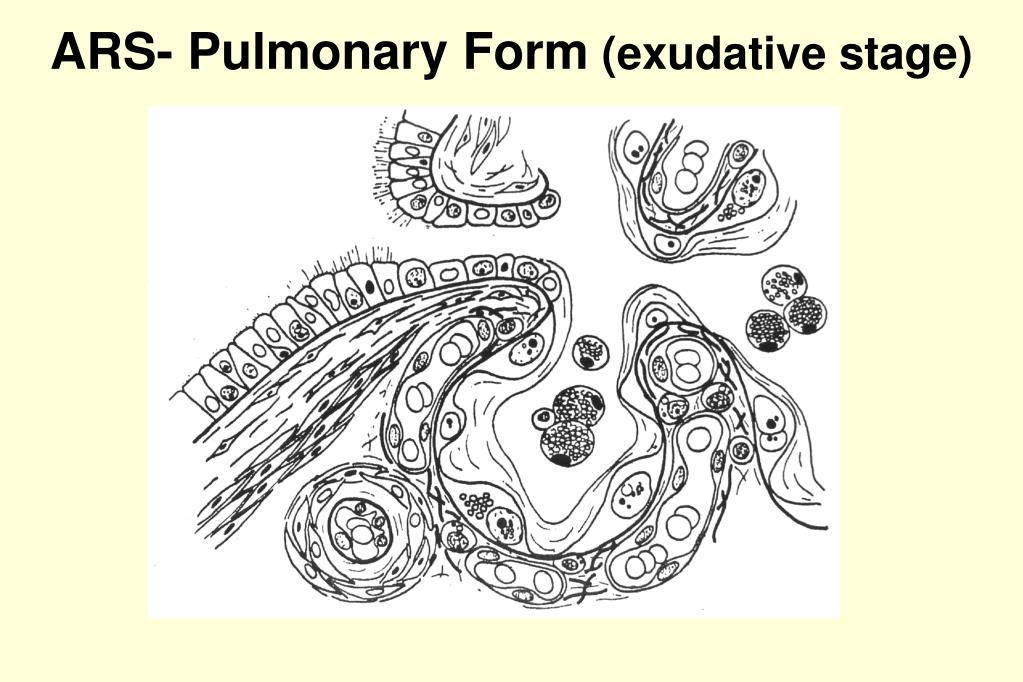 ARS- Pulmonary Form