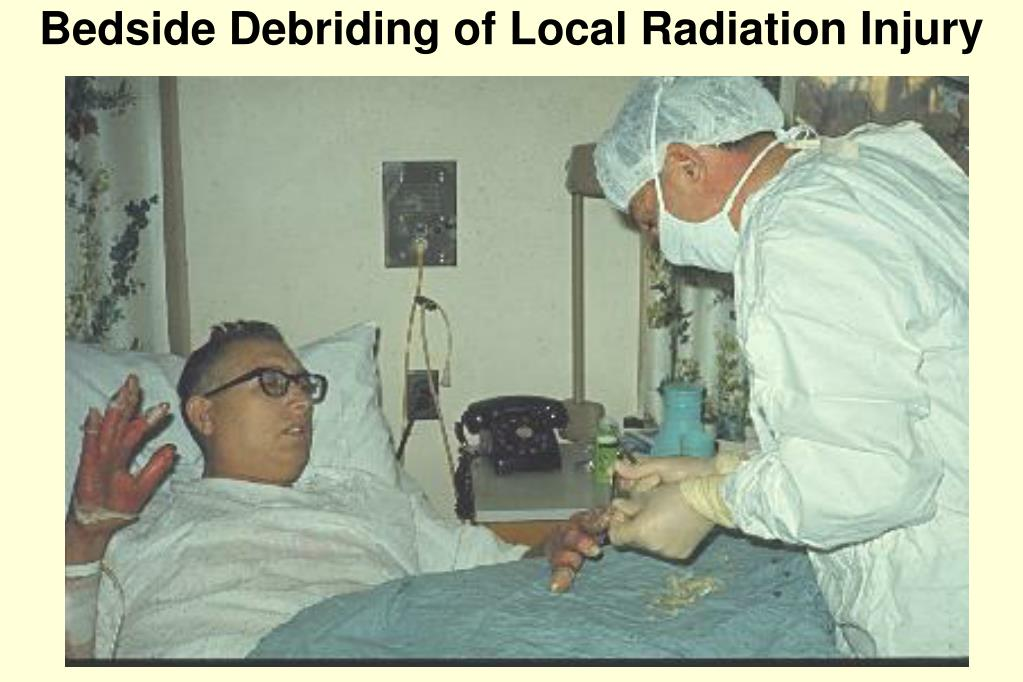Bedside Debriding of Local Radiation Injury