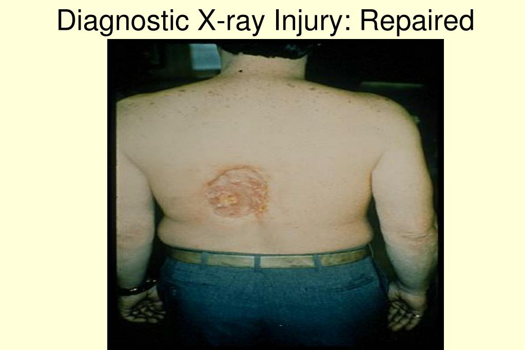 Diagnostic X-ray Injury: Repaired