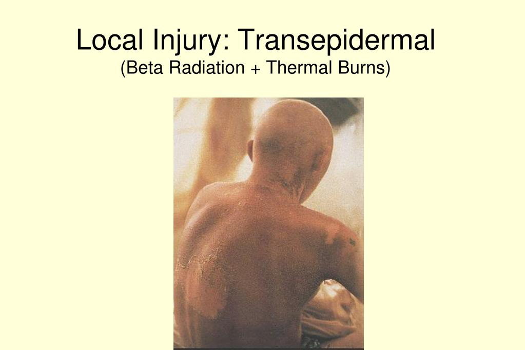 Local Injury: Transepidermal
