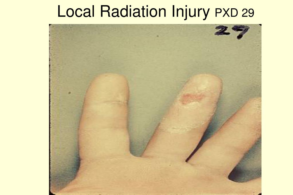 Local Radiation Injury