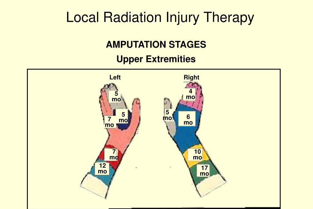 Local Radiation Injury Therapy