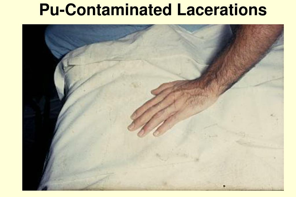 Pu-Contaminated Lacerations
